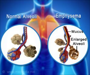 Link Between Air Pollutants and Emphysema Progression Discovered