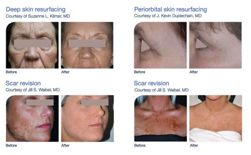 Laser Skin Resurfacing Treatments