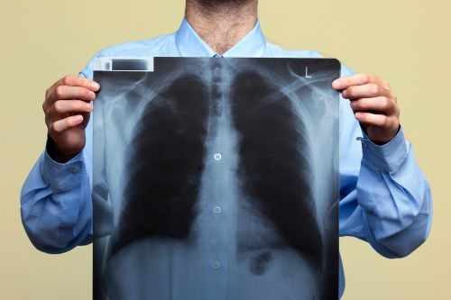 New Guidelines Could Double Number Eligible for Lung Cancer Screening