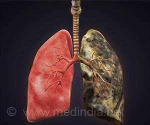 Using Traditional Biomass Stoves can Cause Lung Inflammation