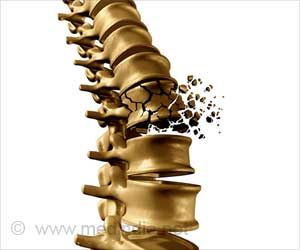 Ovarian Insufficiency Raises the Risk of Osteoporosis
