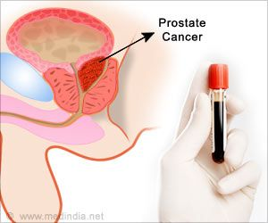 More Than 40 Percent of Prostate Biopsies Could be Avoided With New Blood Test