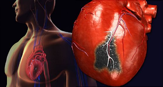 Rx Fish Oil Cuts Heart Dangers in Statin Takers