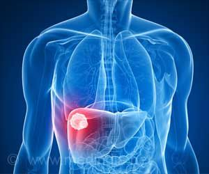 New Type of Liver Cancer Identified: Study