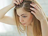 Prostate pill may help halt female hair loss and cause 'significant' growth, study shows