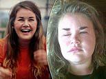 Fitness instructor, 28, battling a mystery allergy that causes her face to swell like a 'pufferfish'
