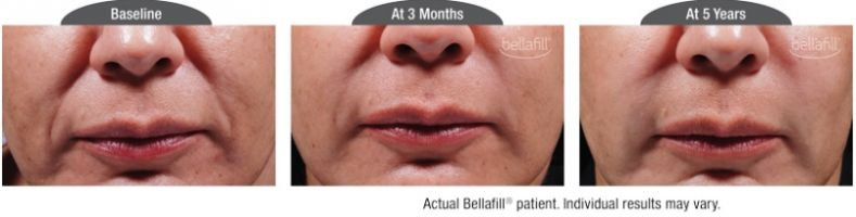 New Permanent Filler Bellafill in Santa Barbara