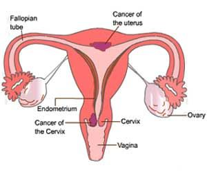 Cervical Cancer Subtype Rising in Some Sub-populations: Study