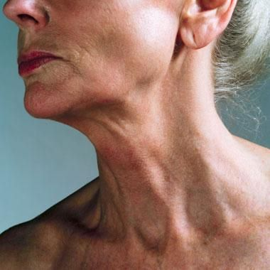 A Review of Botulinum Toxin Treatment for Platysma Bands