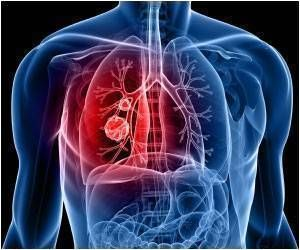 Nocturnal Change in Breathing can Lead to Long-Term Symptoms of COPD