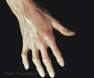 Is Hydroxychloroquine Effective in Treating Hand Osteoarthritis?