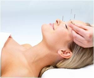 Acupuncture Can Help You Cope With Menopausal Symptoms