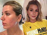 Painful cystic acne left tennis star's sister too afraid to leave the house barefaced for two years