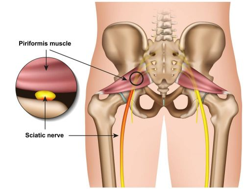The Piriformis: A Tiny Muscle That Can Cause Annoying Problems