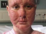 Mother-of-two, 34, with an incurable cancer releases shocking photos of its disfiguring effects