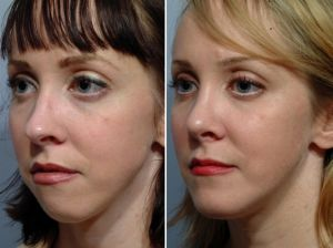 Surgeries That Enhance Facial Structure