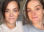 Fitness blogger opens up about coping with adult acne