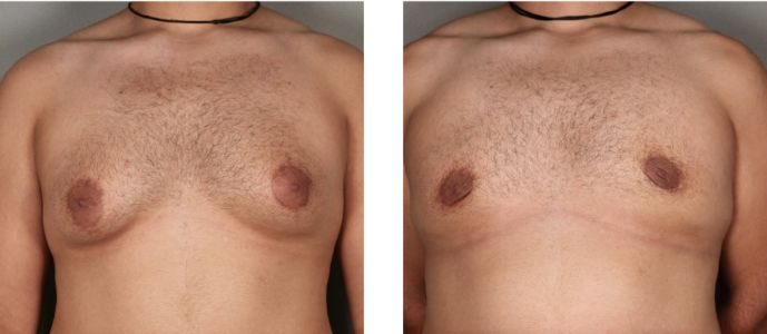 Gynecomastia Surgery Options