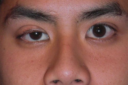 First COVID-19, Then Myasthenia Gravis: Coincidence or Causal?