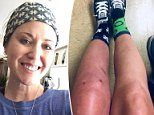 Mother-of-two, 42, battling agonizing condition after knee surgery nicknamed 'suicide disease'