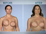 Transformation of divorcee whose uneven breasts were turned symmetrical