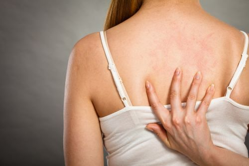 Topical microbiome transplant could be key to alleviating eczema, say researchers