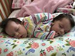 A mother has given birth to healthy conjoined twins