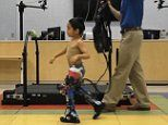 Exoskeleton suit helps children with cerebral palsy walk