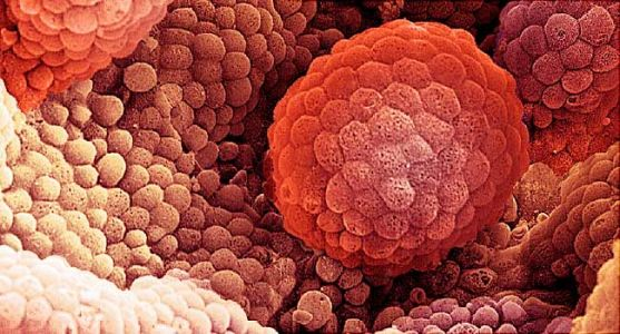 As PSA Tests Drop, Adv. Prostate Cancer Cases Rise