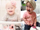 Toddler with Down syndrome who beat blood cancer twice gets to go home