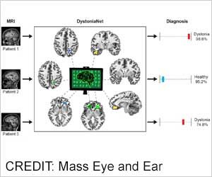 Focal Dystonia Accurately Identified by Artificial Intelligence-Based Deep Learning Platform
