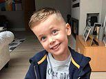 Eczema-stricken boy's flaky skin vanishes after taking a £4.50 'miracle' cream