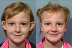 Otoplasty: Corrective Ear Surgery for Children
