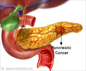 Platinum-based Chemotherapy Can Improve Survival in Pancreatic Cancer Patients