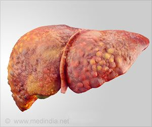 Genetic Causes of Liver Disease in Obesity Identified