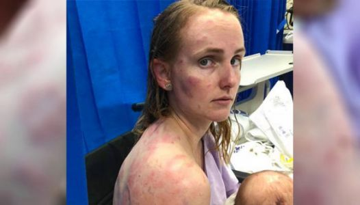 Mom Caught In Horrific Hail Storm Becomes Human Shield To Protect Baby
