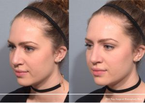 Non-Surgical Rhinoplasty NYC