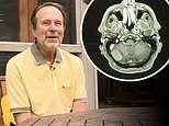 Washington man whose prostate cancer spread to his BRAIN is cured of four 'inoperable' tumors