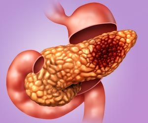Breath Tests May Help Detect Pancreatic Cancer Early