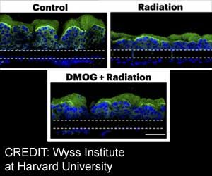 Human Gut Chip can Protect Against Radiation Damage