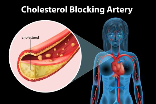 High Cholesterol? If You Have PCOS, the Cause May Not be Rooted in Your Diet