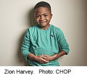Boy's Double Hand Transplant Changed His Brain