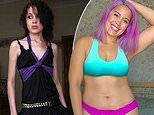 Woman who weighed just 4st 6lbs and reveals how a hashtag helped her overcome her anorexia