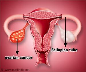 Women With Ovarian Tumors can Conceive
