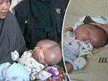 The baby born with TWO FACES: Two-month-old boy has two brains but just one head and body