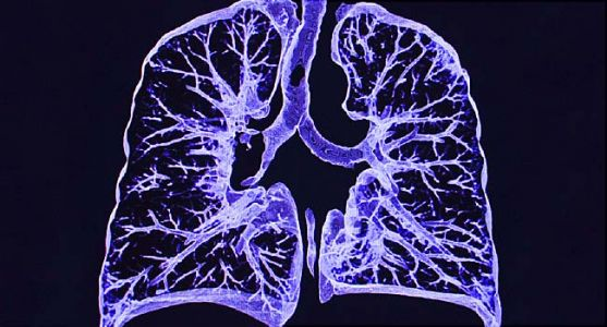 Computers Spot Lung Cancer as Well as Doctors Do