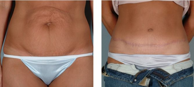 All About Tummy Tuck Scars