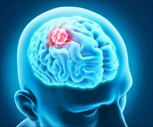 Unique Pathway for Treating Deadly Children's Brain Cancer Identified