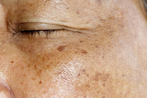 How to Treat Hyperpigmentation at the Dermatologist
