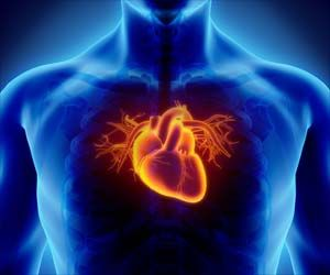 Proton Therapy for Lung Cancer may Help Decrease Heart Disease Risk